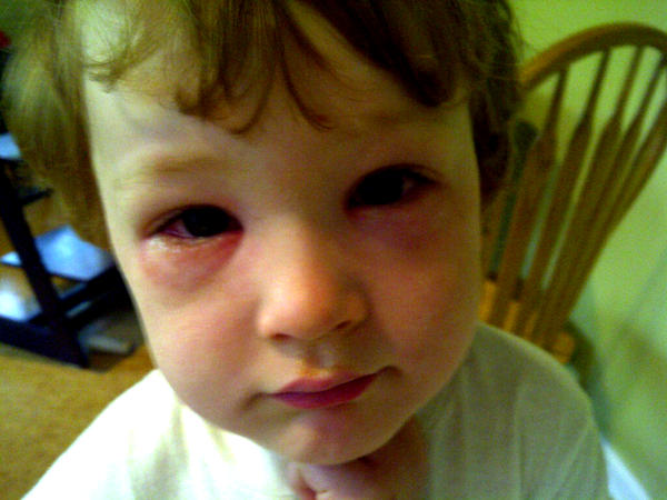 child with allergies puffy eyes
